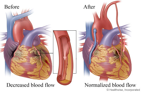 Cardiac Surgeon Santa Rosa
