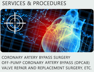 Cardiac Surgery Bay Area